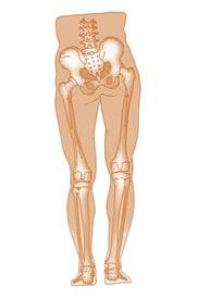 dismetria arti inferiori