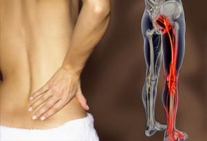 mal di schiena sciatica