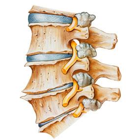 spina dorsale con artrite