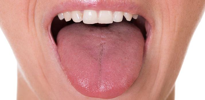 salute della lingua