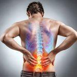 Come prevenire il mal di schiena: la guida definitiva